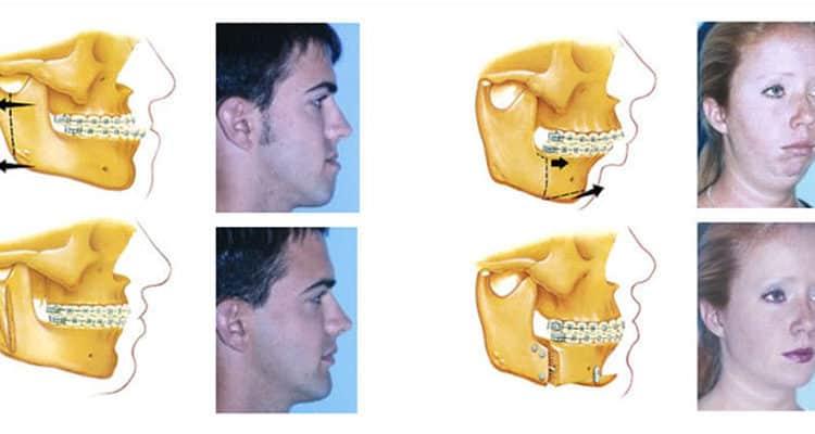 Oral Surgery – Dentalclinicsinkochi